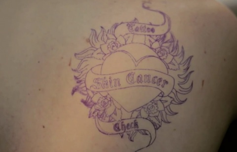 skin-cancer-check_tattoo.jpg