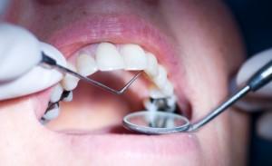 a fogszuvasodás okoz-e fogyást