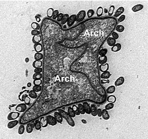 epibiotic bacteria.jpg