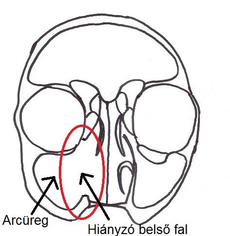 medial maxillectomy.jpg