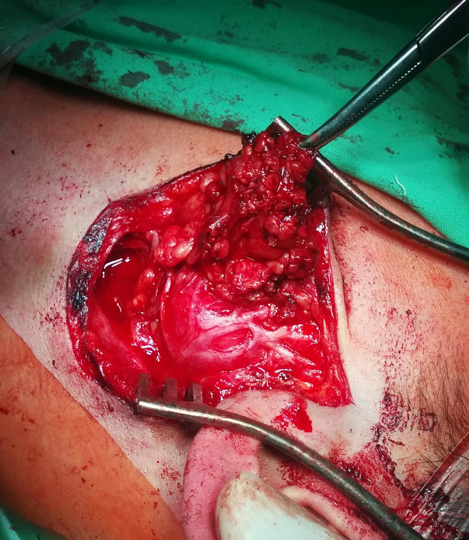 parotis_tumor.jpg
