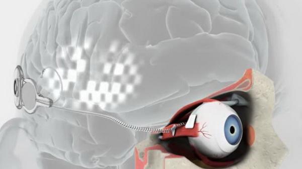 trigeminus látás