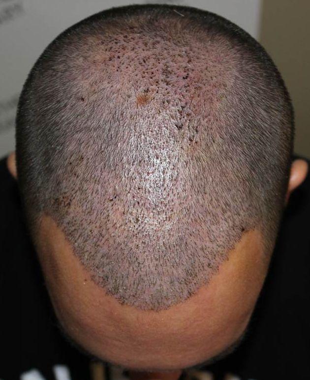1 hetes kontroll a HairHungary Klinikán