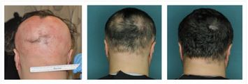 Alopecia areata kezelés.jpg