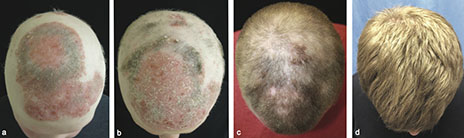 hair tofacitinib.jpg