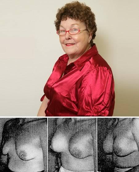 a98767_first-plastics_4-breast-implants.jpg