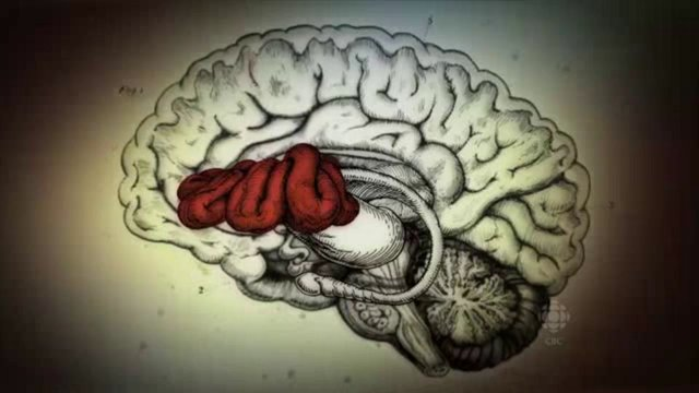aya brain.jpg