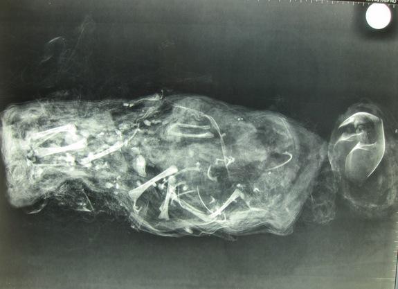 mummified-fetus-2.jpg