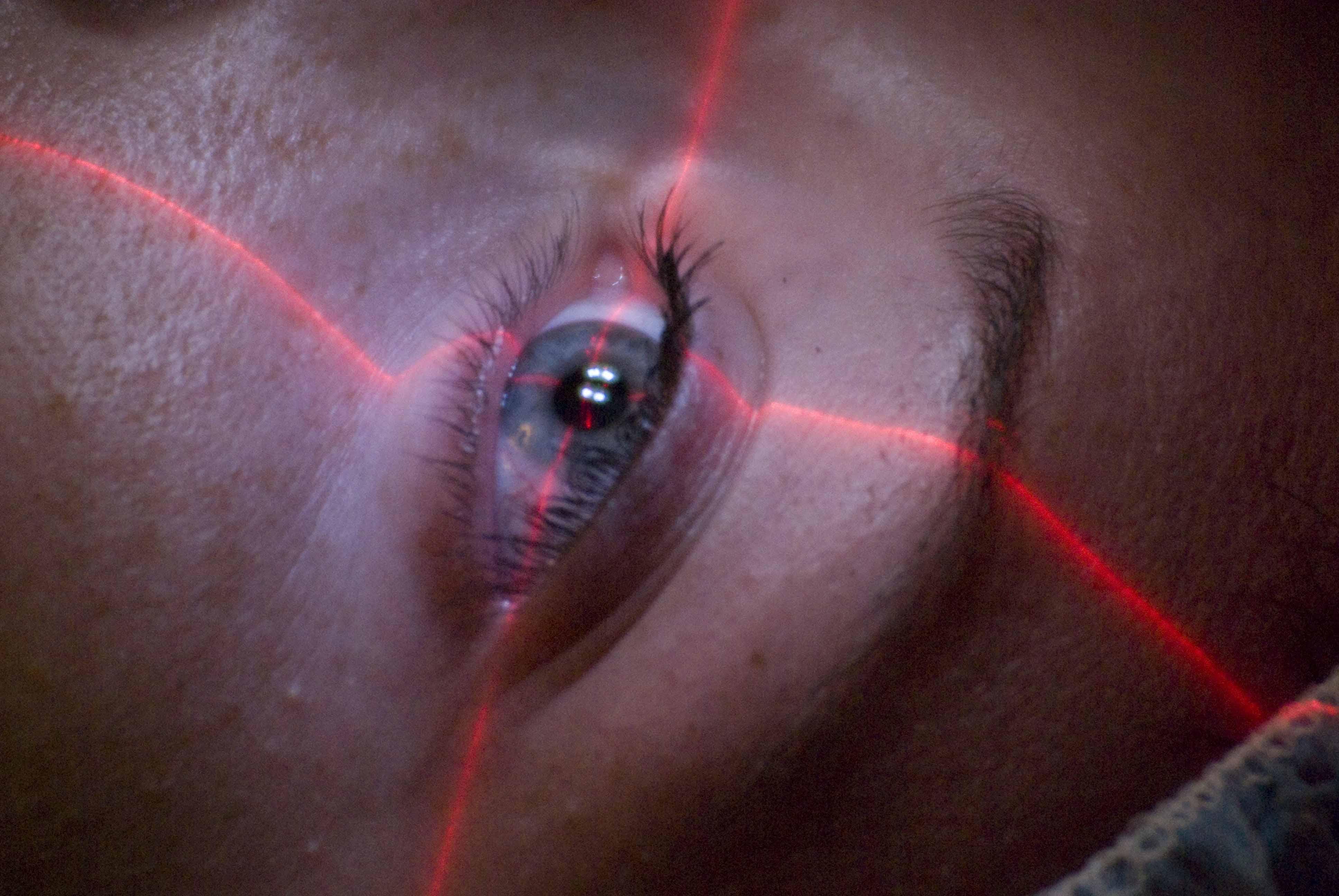 a dioptriás látás az