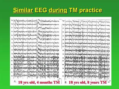 TM-agy1.jpg
