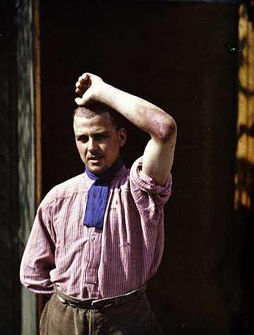 Francia katona mustárgáz okozta bőrsérülése, 1915