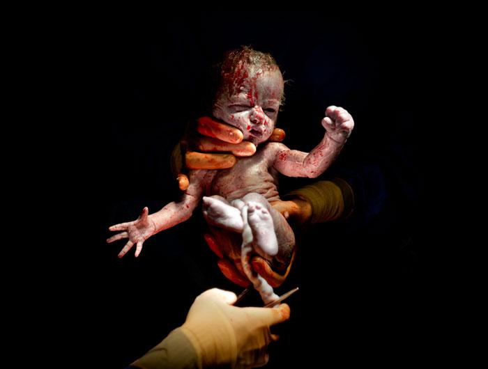newborn-infant-photos-c-section-cesar-christian-berthelot-coverimage.jpg