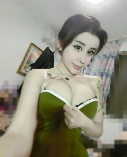 kinai-lany-plasztikai-mutet-20.jpg