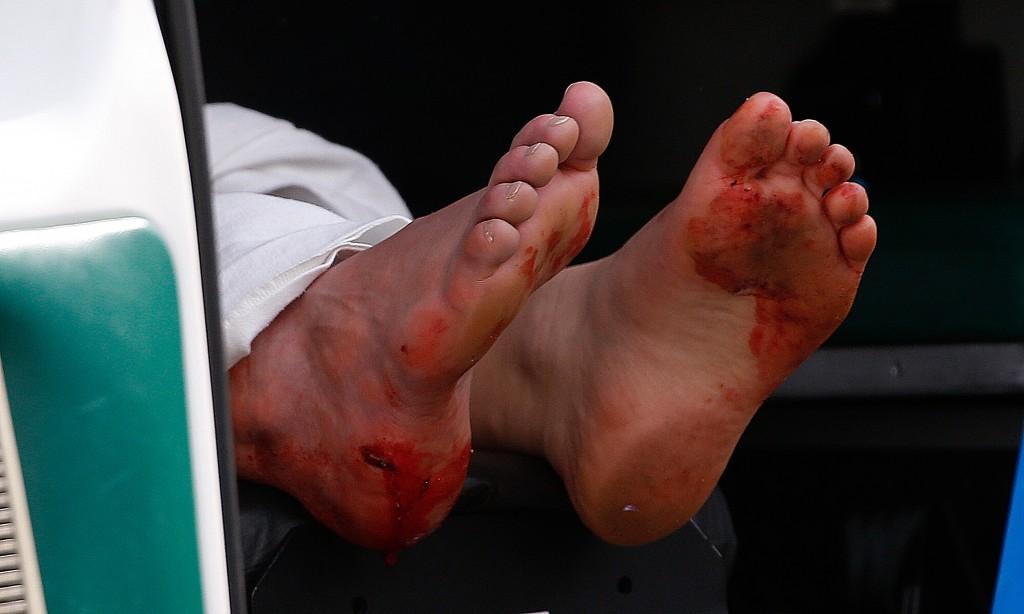 injured-1024x614.jpg