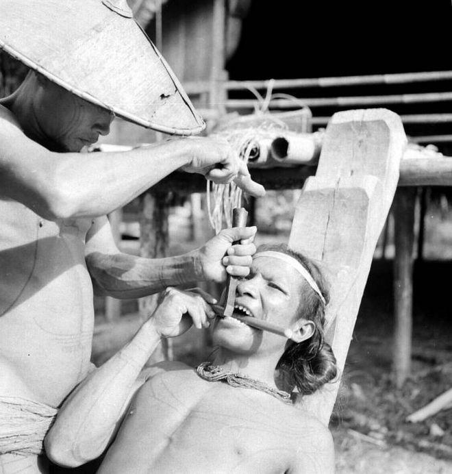 1939_indonez_ferfi_fogat_hegyesre_veseti.jpg