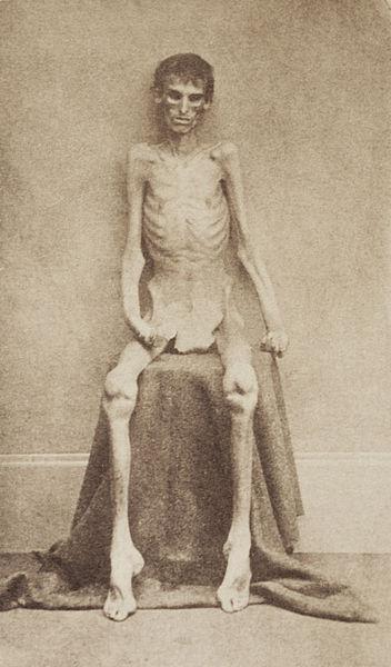 1865. Andersonville-i, déliek által fenntartott polgárháborűs horrorbörtönt túlélt egyik fogoly. A hely ma skanzen, olyan polgárháborús Auschwitz féle..jpg