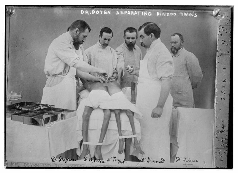 1902. Első kísérlet sziámi ikrek szétválasztására.jpg