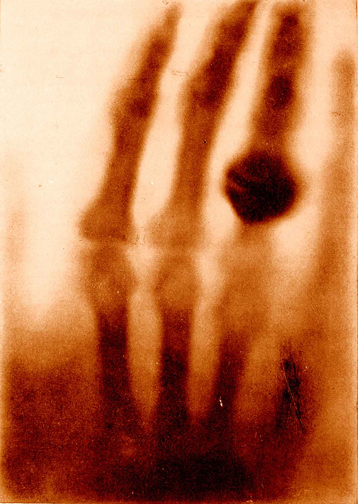 1895. Az első Röntgen felvétel. A képen Mrs. Röntgen keze látható..jpg