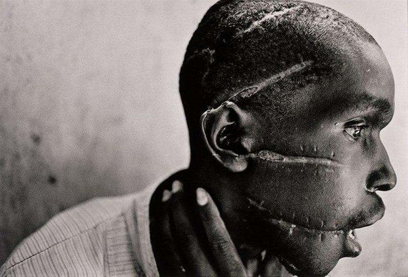 1990. Ruandai népirtás hutu túlélője..jpg