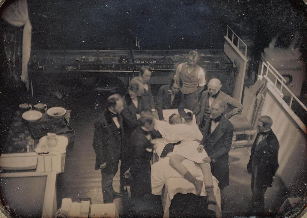 1847. Az első műtéti fotó. Éterrel elkábított betegen. Dagerrotípia Massechusets-ből..jpg