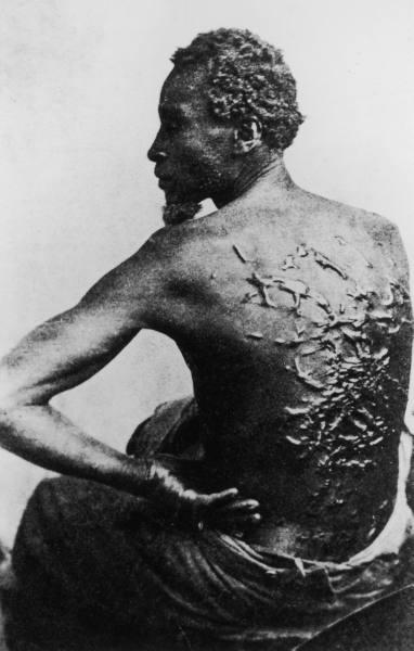 1863. Megkorbácsolt rabszolga mutatja hegeit..jpg