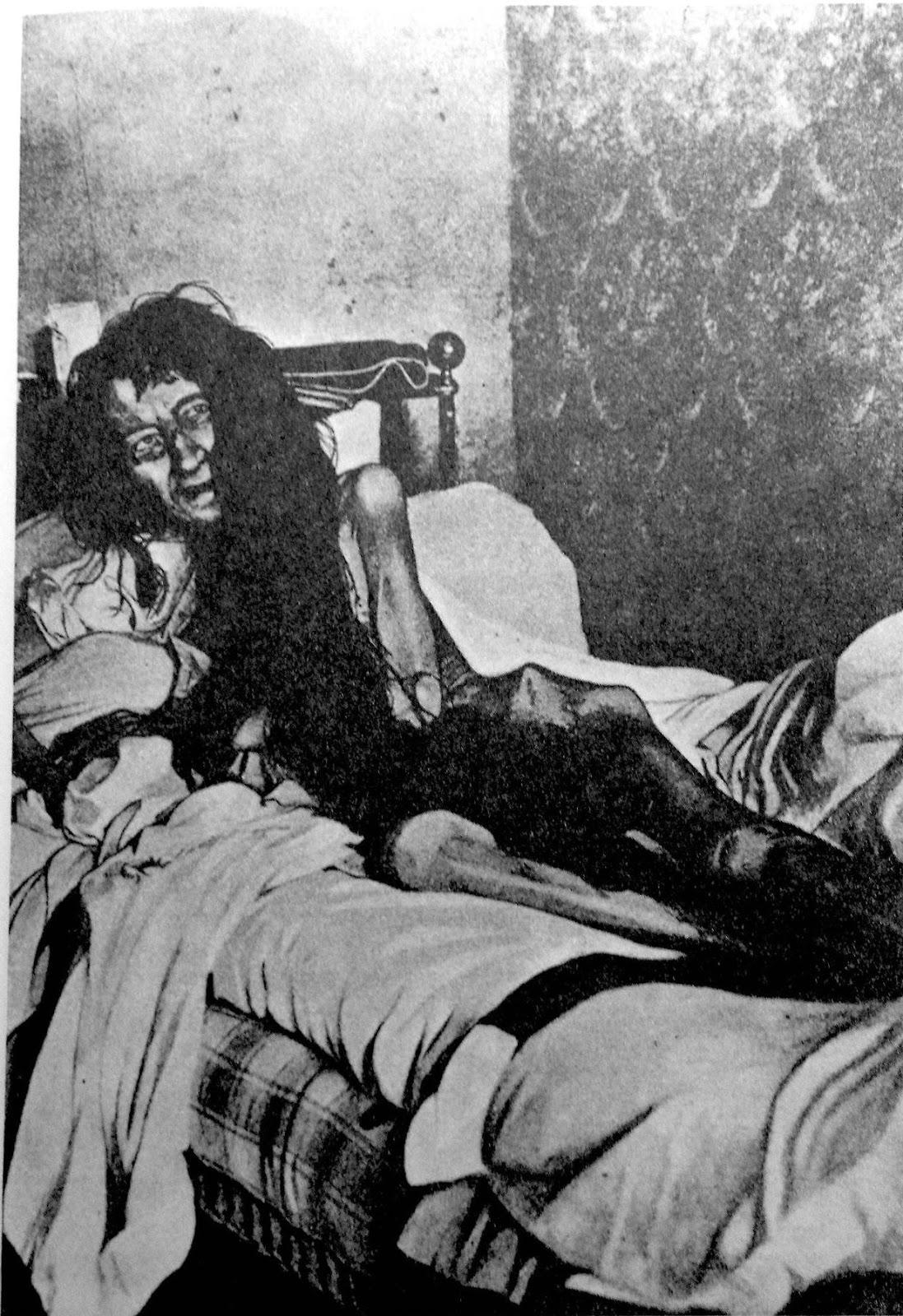 1901. Ez a megrázó felvétel Blanche Monnier-ről készült nem sokkal azután, hogy 25 éven keresztül saját családtagjai egy szobába zárva tartották fogságban..jpg
