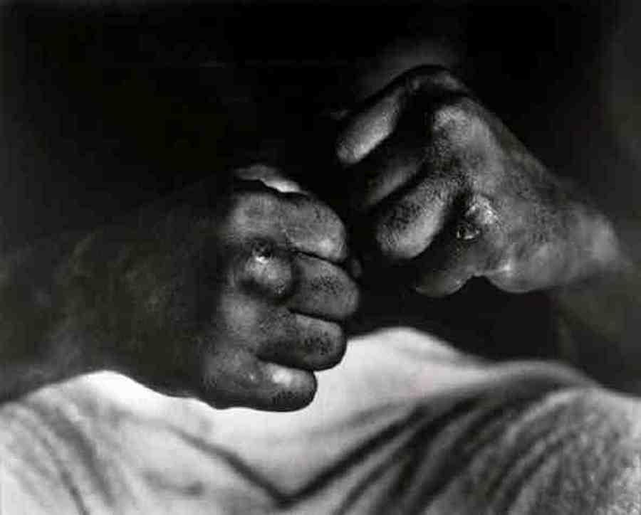 1963. Muhammad Ali öklei a Cooper ellen mérkőzés után..jpg