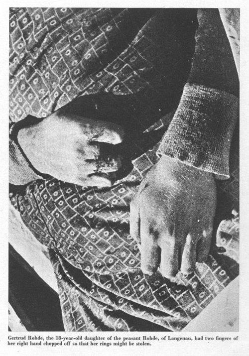 Megcsonkított asszony. Gyűrűjét az ujja levágásával rabolták el.