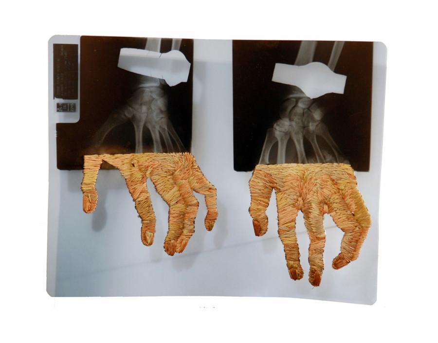 Röntgenfelvételek kihímezve