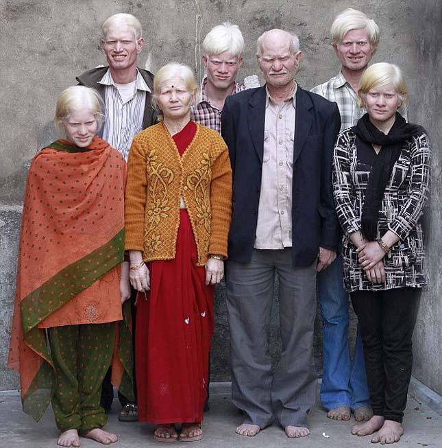 albino_india.jpg