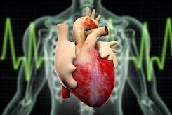 szívkatéter.jpg
